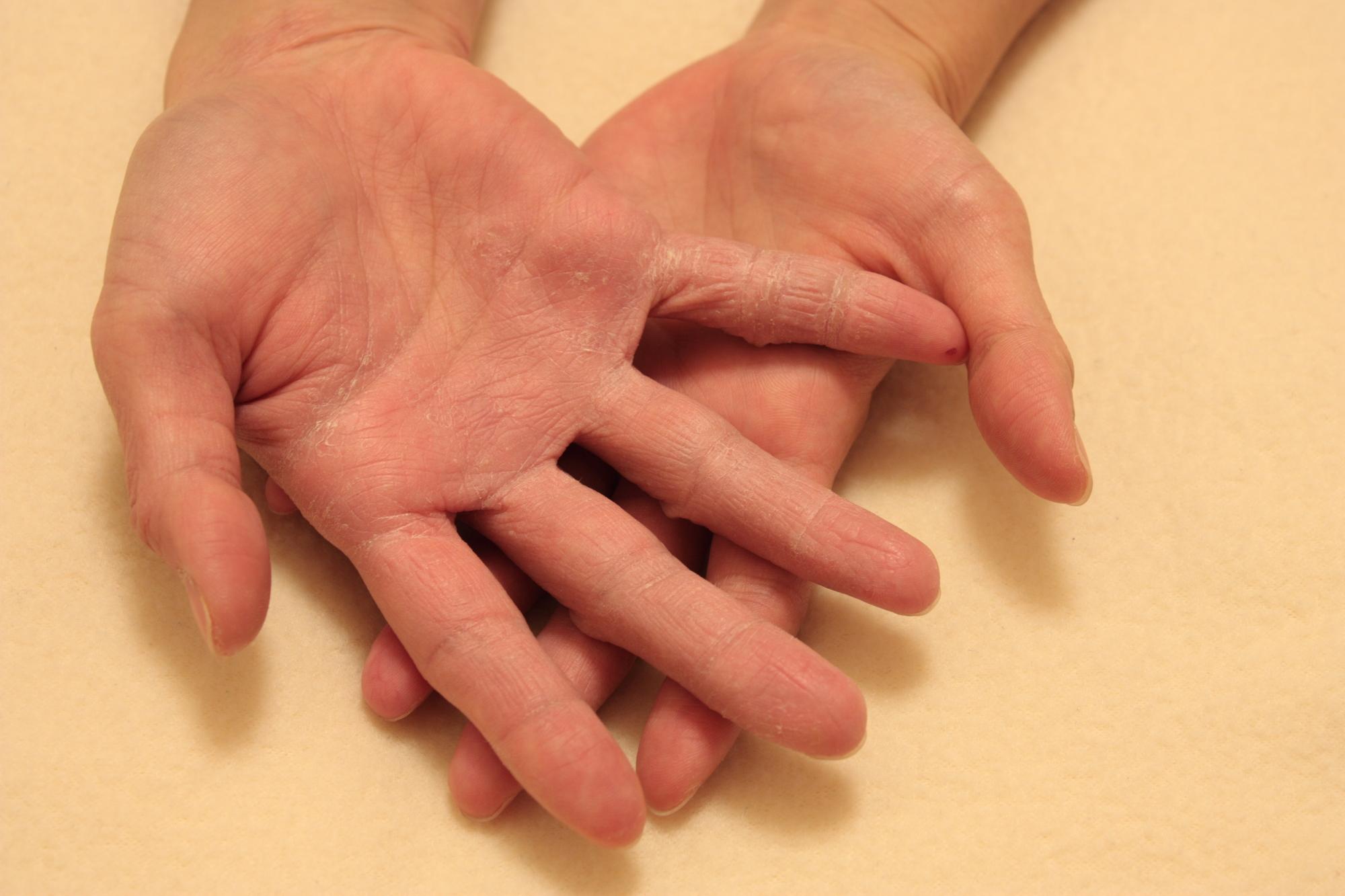 手荒れに悩んだ3人の美容師がしていた手荒れ対策と予防